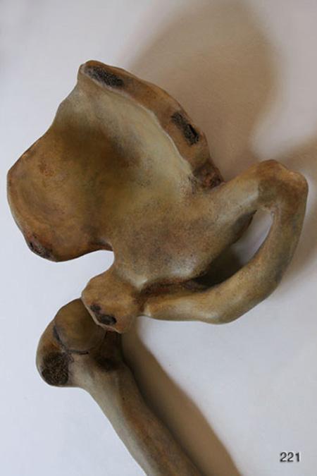 Reid bonesdet1